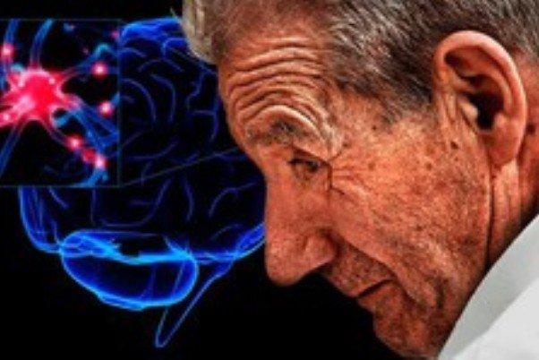 با همکاری محققان خارجی صورت گرفت؛ درمان پارکینسون با سلولدرمانی توسط محققان کشور